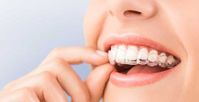 Woman removing invisalign from teeth